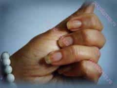 Белые пятна на ногтях рук: знаки судьбы или признак болезни?