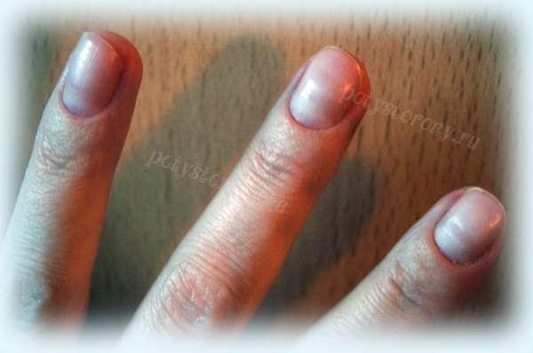 крупные ногти